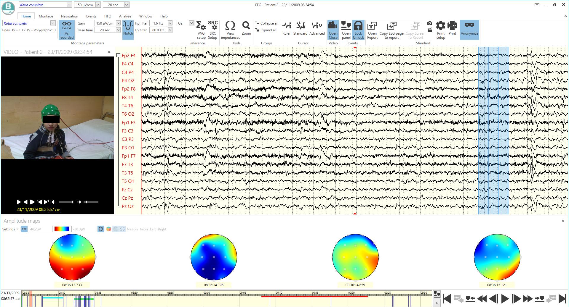 BRAIN QUICK example3 - BRAIN QUICK EEG