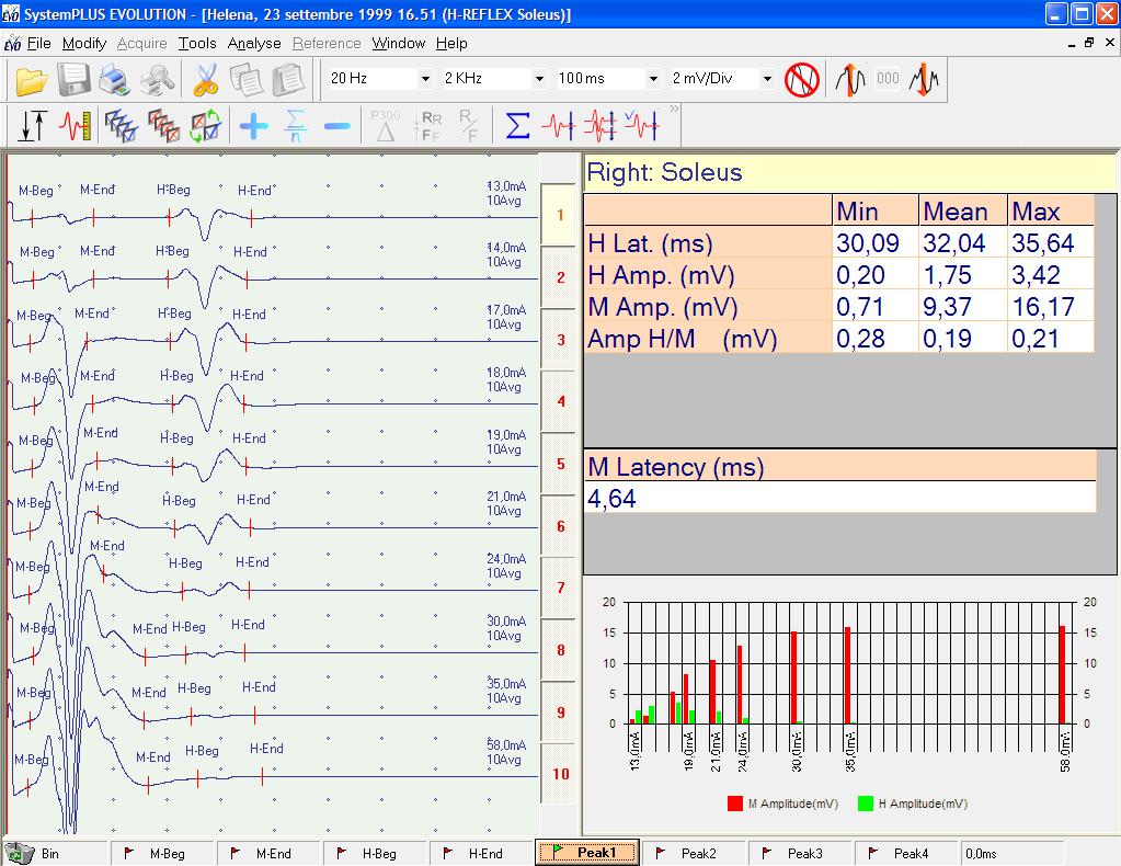 MYOQUICK EMG H Reflex Screenshot rear - MYOQUICK EMG