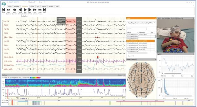 BQ LTM Line Software 04 - BRAIN QUICK Mobiles EEG