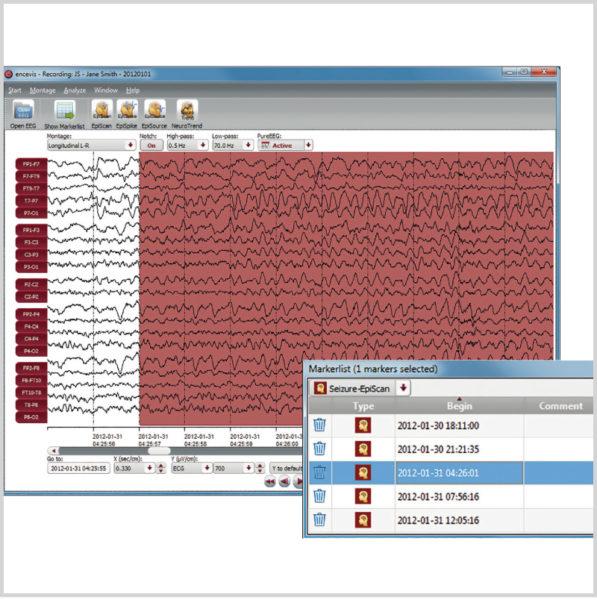 Micromed Gruppe - SIGMA Medizin-Technik: encevis EEG-Analyse Software von AIT für Ihr NEUROWERK EEG, EpiScan Modul