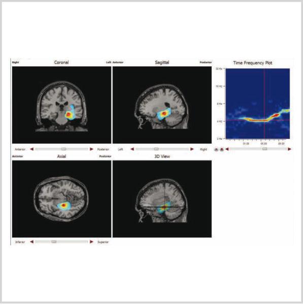 Micromed Gruppe - SIGMA Medizin-Technik: encevis EEG-Analyse Software von AIT für Ihr NEUROWERK EEG, EpiSource Modul