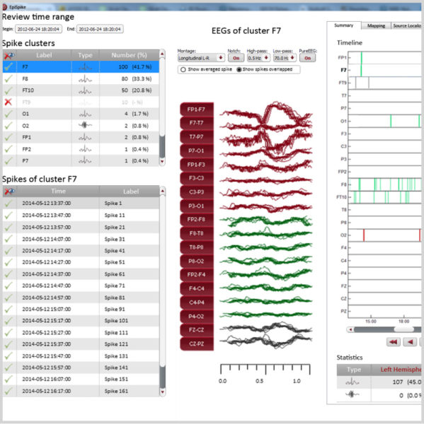Micromed Gruppe - SIGMA Medizin-Technik: encevis EEG-Analyse Software von AIT für Ihr NEUROWERK EEG, EpiSpike Modul