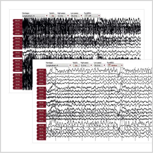 Micromed Gruppe - SIGMA Medizin-Technik: encevis EEG-Analyse Software von AIT für Ihr NEUROWERK EEG, PureEEG Modul