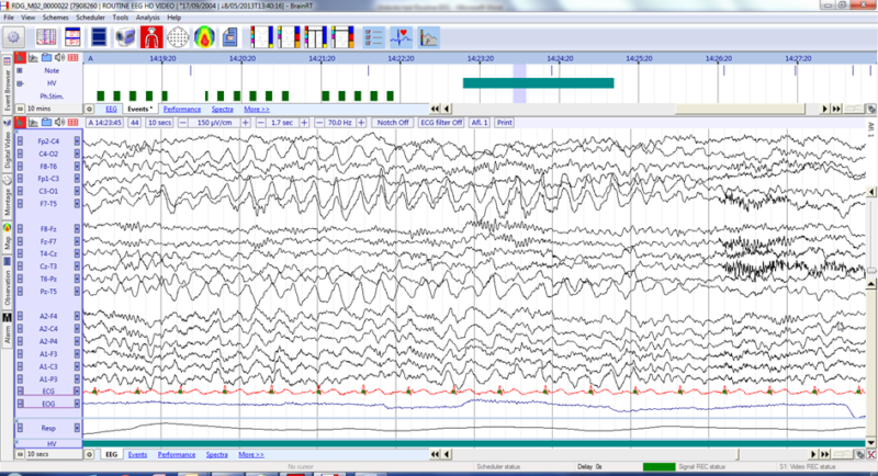 routine eeg zonder video 800x434 - Micromed Acquires OSG BVBA
