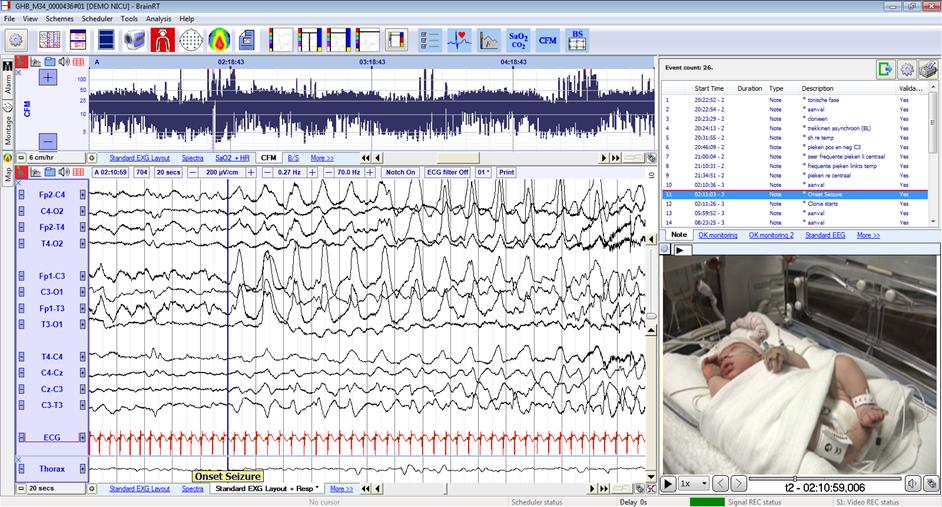 OSGnicu monitoring - BRAIN QUICK Ambulatoire