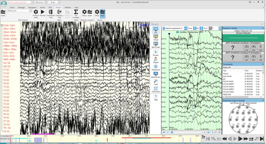 Software and Data Analysis 1024x556 - BRAIN QUICK Ambulatoire