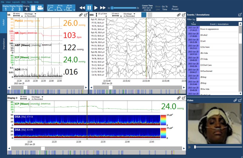 Envision 1 lg 1024x667 - Moberg CNS System